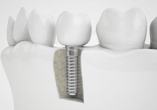 Hartford CT Dental Implants