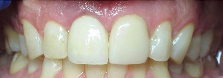 anterior-implant-to-restore-broken-tooth-After-Image