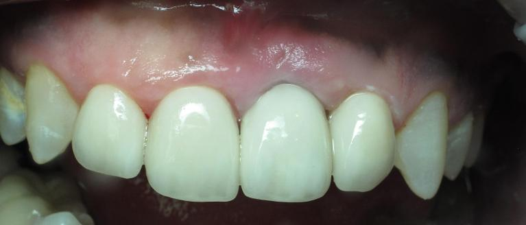 anterior-implant-veneer-After-Image