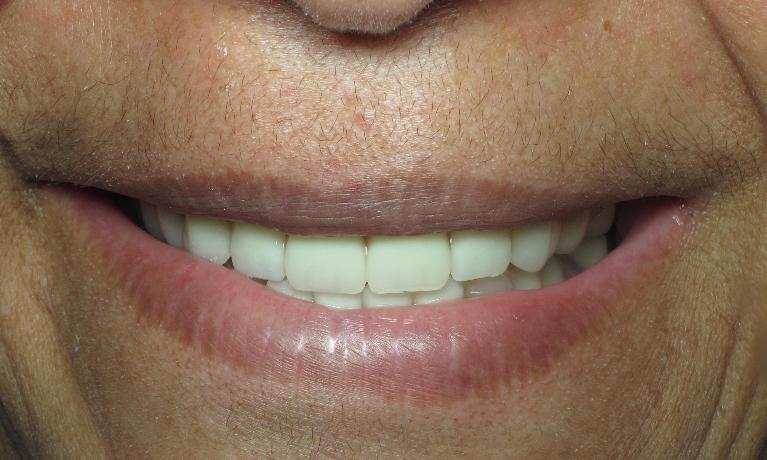 Implant-Over-Denture-After-Image