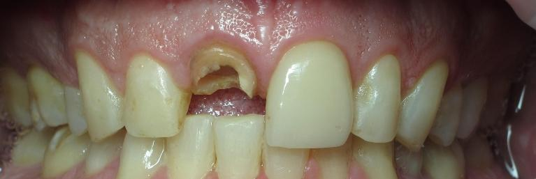 anterior-implant-to-restore-broken-tooth-Before-Image