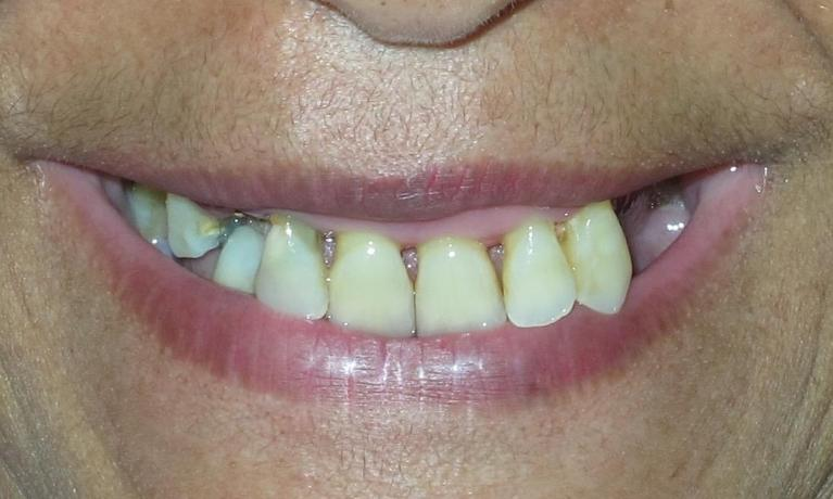 Implant-Over-Denture-Before-Image